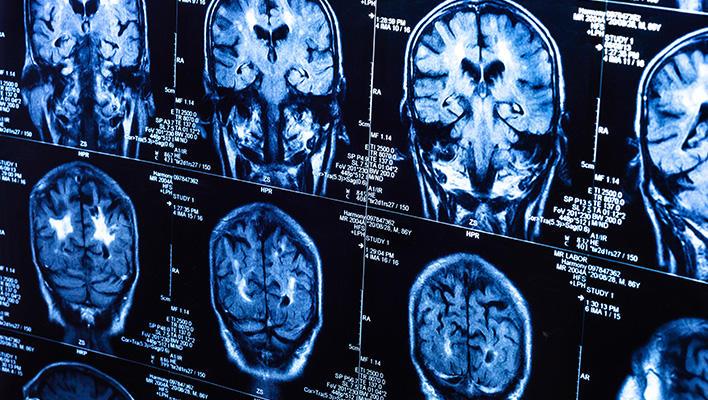 メインビジュアル : 病気の変化を見抜く医師を支援する!複数のCT画像を1秒で位置合わせする技術